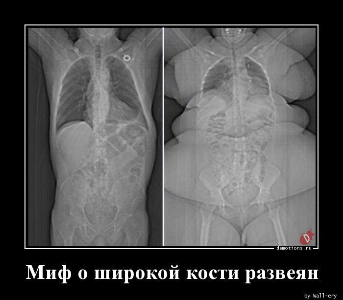 Миф о широкой кости развеян